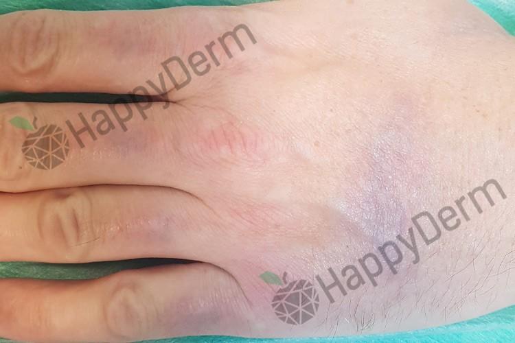 До / После - Лазерное удаление татуировок различного цвета - Фото 1