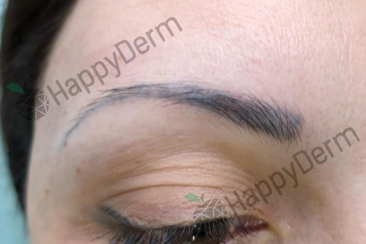 До / После - Удаление перманентного макияжа (губы или брови) - Фото 1
