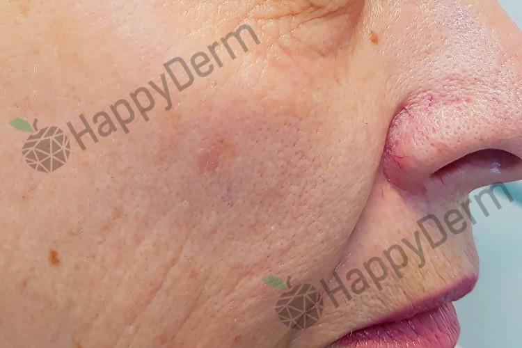 До / После - Лазерное фракционное удаление морщин и омоложение кожи - Фото 1
