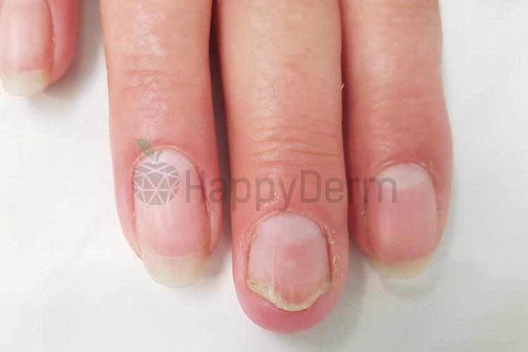 До / После - Лазерное лечение грибка ногтей - Фото 2