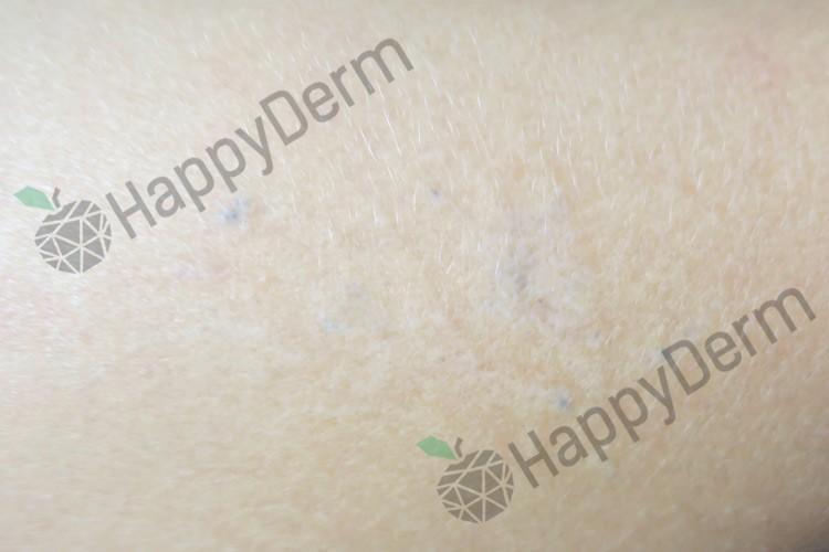 До / После - Лазерное удаление татуировок различного цвета - Фото 2
