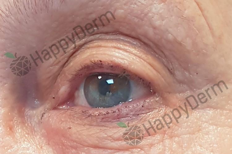 До / После - Лазерное фракционное удаление морщин и омоложение кожи - Фото 2