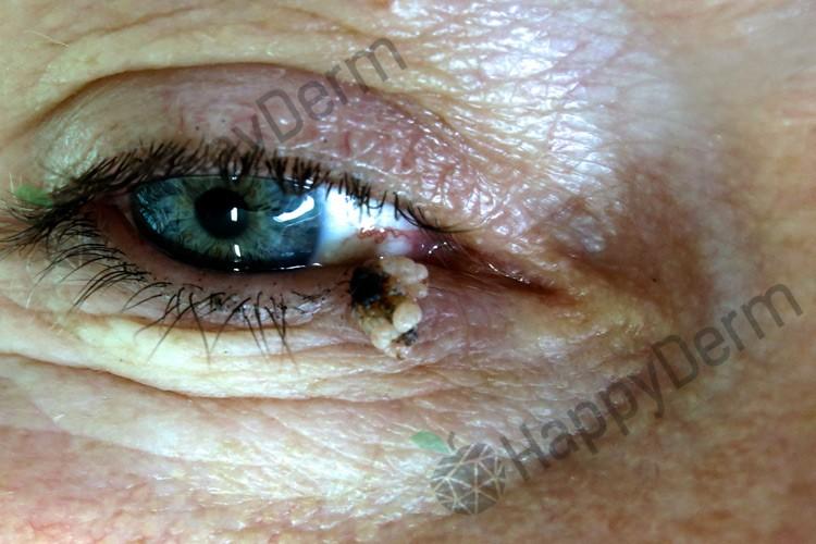 До / После - Лазерное удаление новообразований кожи (у взрослых и детей) - Фото 2